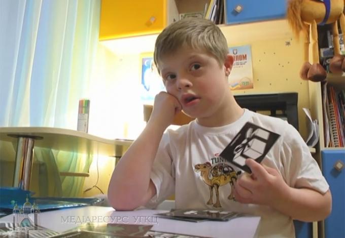 Діти зі синдромом дауна відрізняються